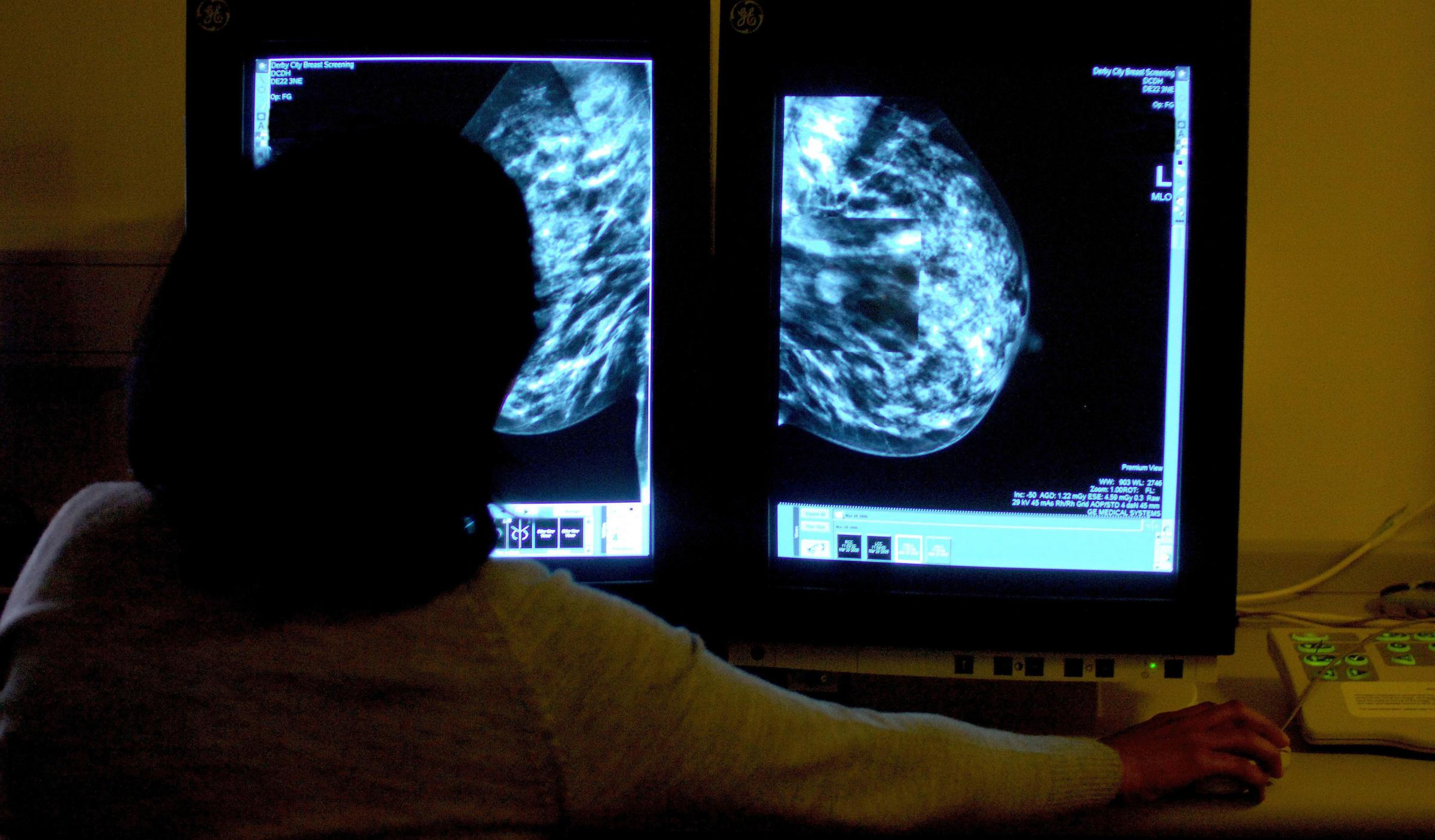 Breast cancer 'wonder drug' to become available on the NHS